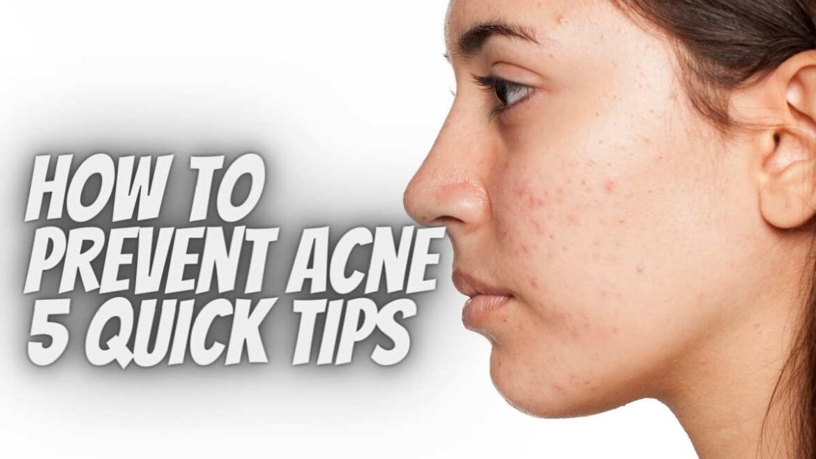 Top 5 Acne Prevention Tips